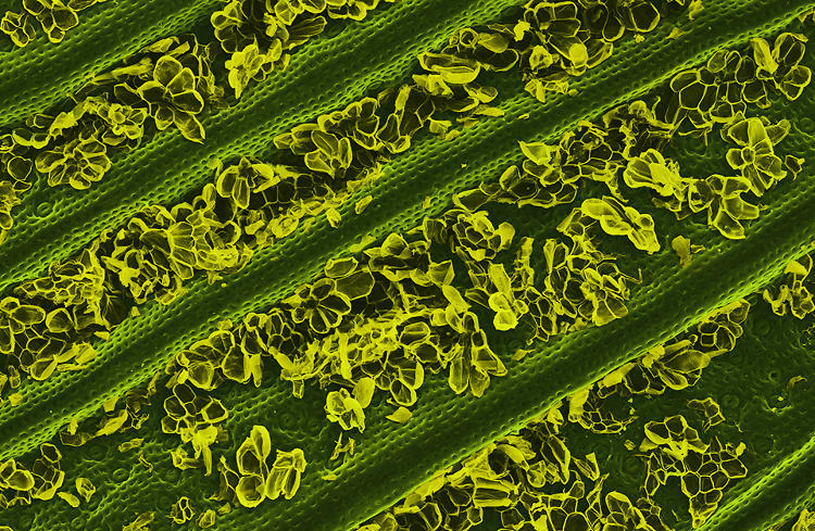 <p>Alpert's writer and researcher, Ingfei Chen, writes: &quot;The deep furrows between the ridges are carpeted, it seems, by flowers (in yellow). These structures, called trichomes, are tiny, fuzzy hairs topped with multi-celled parasols that mimic fragile blossoms. To the naked eye, trichomes give the leaf a silvery-white appearance. They prevent water loss by reflecting the sun's rays and shading pores in the leaf that resemble fat lips (stomata, lower right). Those pores close during the heat of the day to keep water in. But at night, they open to let in carbon dioxide--which, along with water and sunlight, later gets converted into food for the pineapple through photosynthesis.&quot;</p>