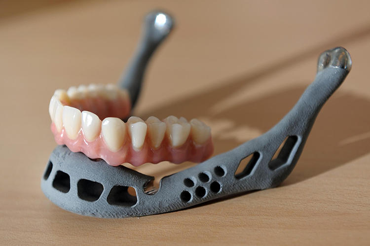 <p>Last summer, an 83-year-old woman in the Netherlands who had contracted a chronic bone infection was fitted with a 3-D printed jawbone. The new jaw, which was coated with a bioceramic layer for durability, was printed with articulated joints and cavities for dentures. It was also designed to encourage muscle attachment. The woman was able to speak shortly after surgery and able to swallow the next day.</p>  <p>Photo: Yorick Jansens</p>