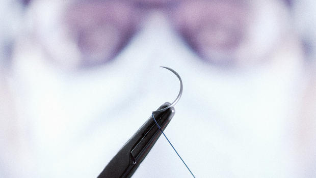 This Smart Surgical Thread Collects Data As Wounds Are Healing