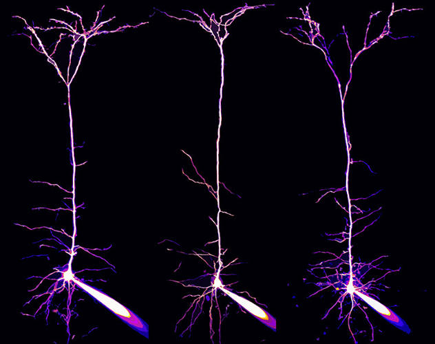 <p>Pyramidal neurons and their dendrites visualized in the visual cortex of a mouse brain</p>  <p>Dr. Alexandre William Moreau<br /> 17th Place<br /> Institute of Neurology, University College London<br /> London, U.K.<br /> 2-Photon, Focus Stacking, Fluorescence, Patch clamp<br /> 40X</p>