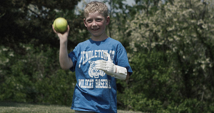 <p>When Luke Dennison wears his prosthetic hand to school, the other kids think he's cool.</p>