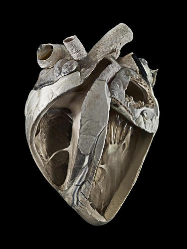 <p>Cow heart. Michael Frank, Royal Veterinary College</p>