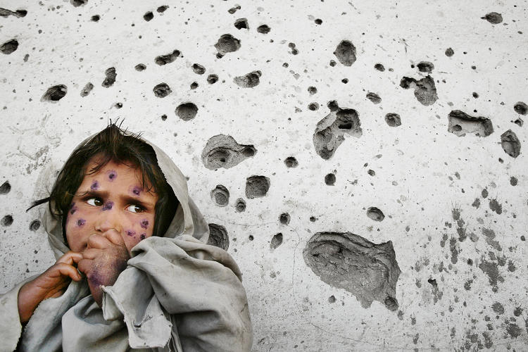 <p><strong>Mahbooba</strong>, 7, stands against a bullet-ridden wall waiting to be seen at a health clinic.</p>