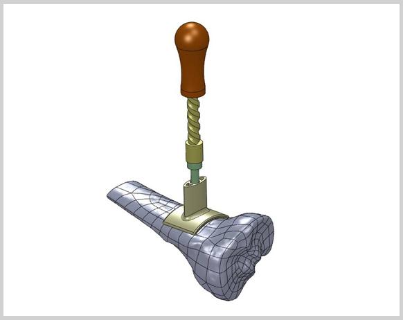 bone-drill